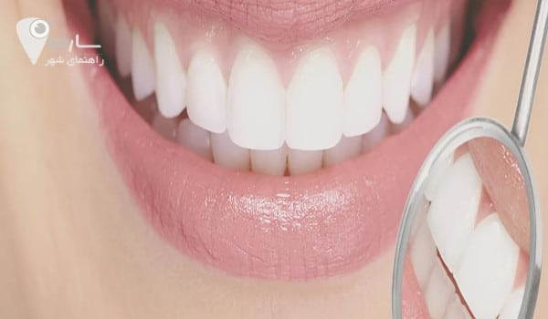 توضیحاتی در مورد لمینت دندان سرامیکی - لمینت دندان در شیراز