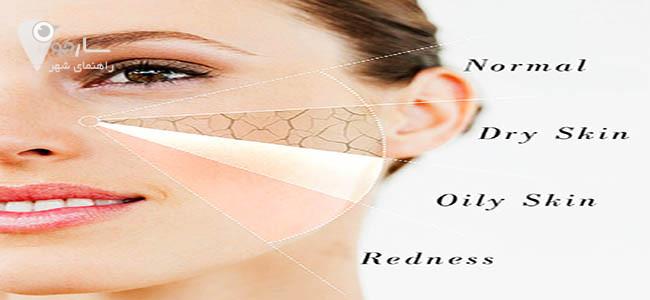 تشخیص نوع پوست بعهده متخصص پوست شیراز است