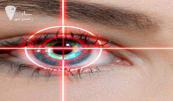 ارائه پاسخ سوال عمل لیزر چشم در شیراز یا عمل عمل prk چشم در شیراز چیست؟ به کاربران عزیز سایت