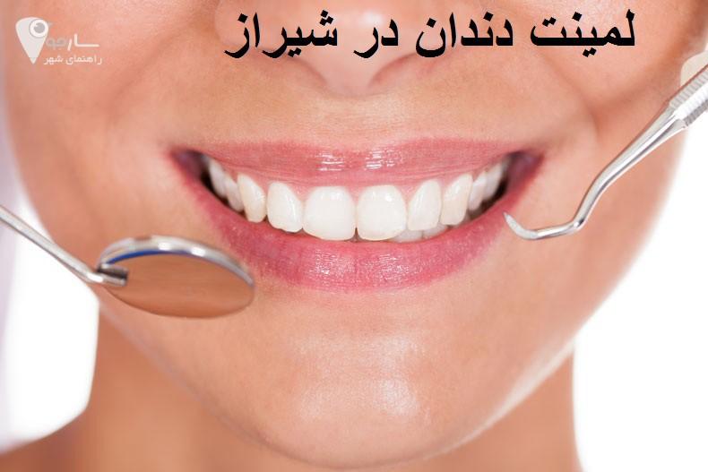 لمینت دندان در شیراز