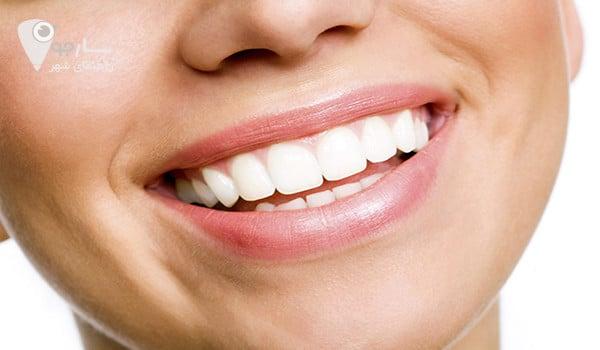 توضیحاتی در مورد قیمت لمینت دندان برای کاربران سایت - لمینت دندان در شیراز