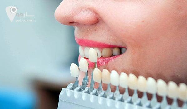 توضیحاتی در مورد لمینت دندان کامپوزیتی برای کاربران سایت - لمینت دندان در شیراز