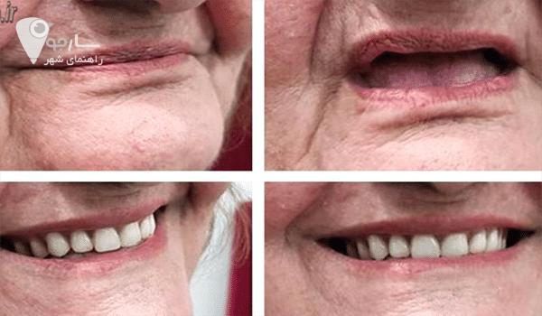 کار لابراتوار دندانسازی در شیراز