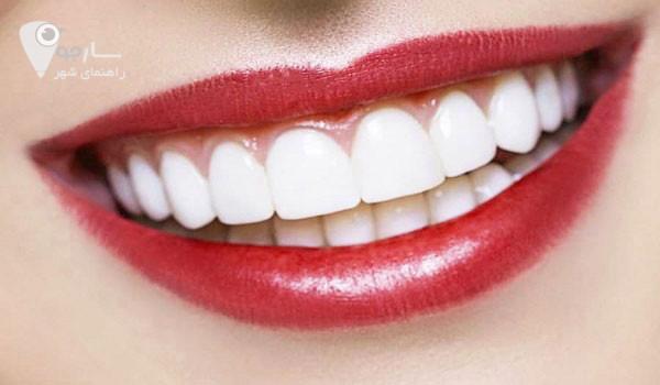 لبخند هالیوودی در شیراز آدرس لبخند هالیوودی در شیراز عوارض طرح لبخند بهترین دکتر برای اصلاح طرح لبخند