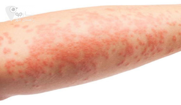 خشکی پوست ممکن است باعث اگزما شود.