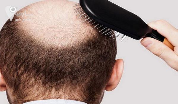 درمان ریزش مو ارثی و درمان ریزش مو مردان با استفاده از روش های خانگی تاثیر کمی دارد.