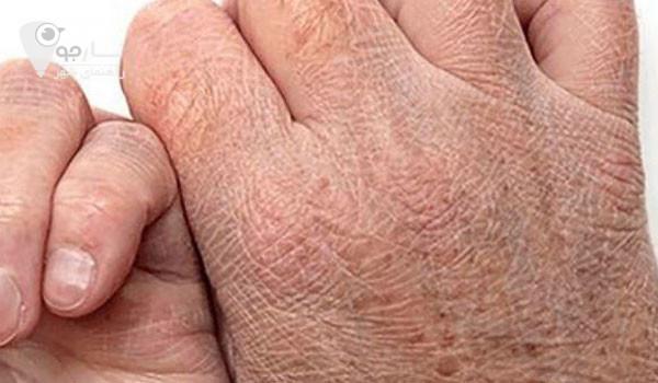 خشکی پوست دست در اقایان رایج تر از خانم ها میباشد.