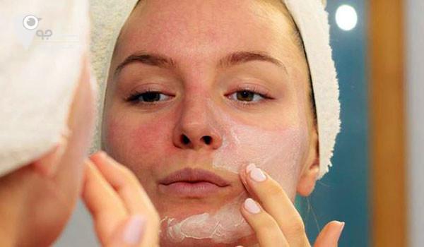 خشکی پوست صورت و عدم توجه به ان ممکن است باعث اگزما شود.