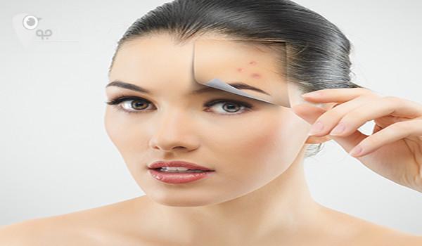 راهکارهایی برای از بین بردن جای جوش صورت