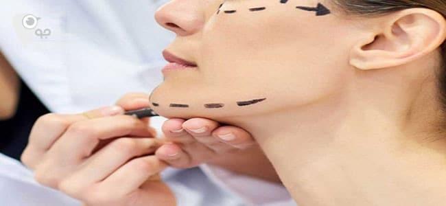 جراحی فک توسط جراح فک و صورت شیراز