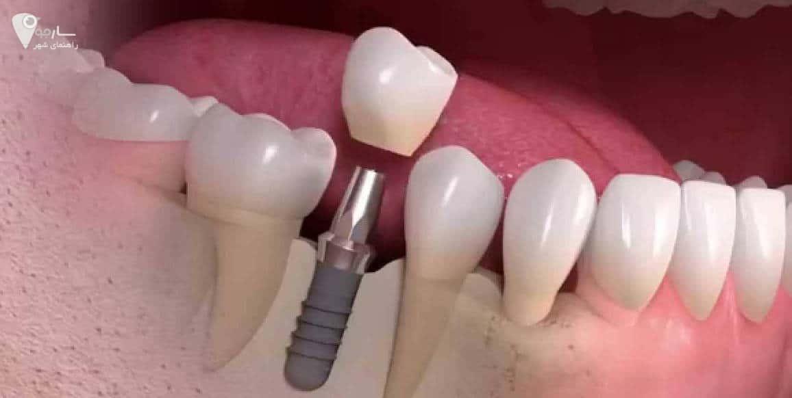 بهترین و ارزانترین پزشکان کاشت دندان در شیراز