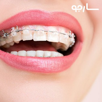دکتر سیروس محمدی نژاد متخصص جراحی دهان، فک و صورت شیراز