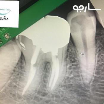 عصب کشی و ترمیم دندان