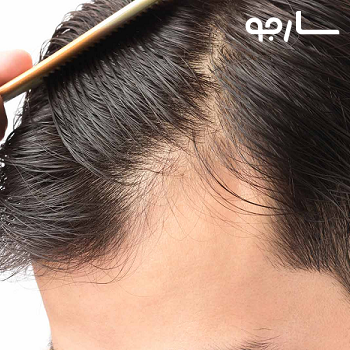 کلینیک کاشت موی امیدوار شیراز