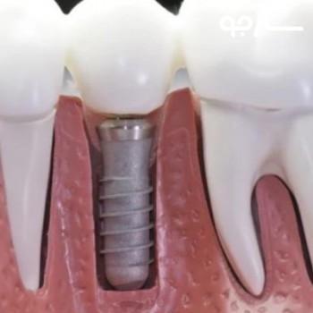 دکتر سمیه واحدی پور دندانپزشک عمومی شیراز