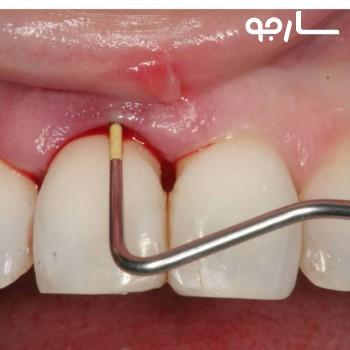 دکتر حجت الله مهدی بیرقدار دندانپزشک عمومی شیراز