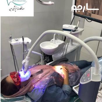 در حال بلیچينگ دندان