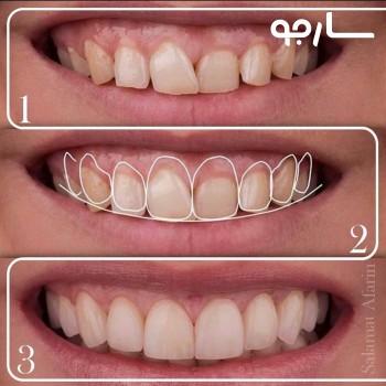 طراحی لبخند دیجیتال کلینیک دندانئزشکی سلامت آفرین شیراز