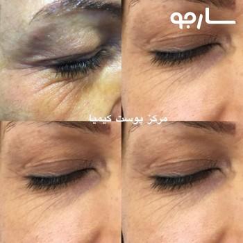 رفع افتادگی پلک و خطوط اطراف چشم بدون جراحی با دستگاه پلاسما جت