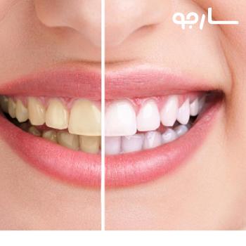 دکتر محمد حسن کلانتری متخصص پروتز های دندان شیراز